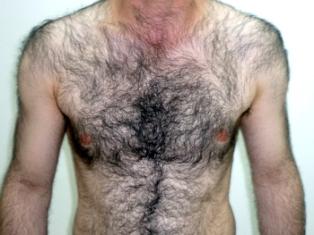 Laser Hair Removal For Men Hair Removal Mississauga Laser Soprano